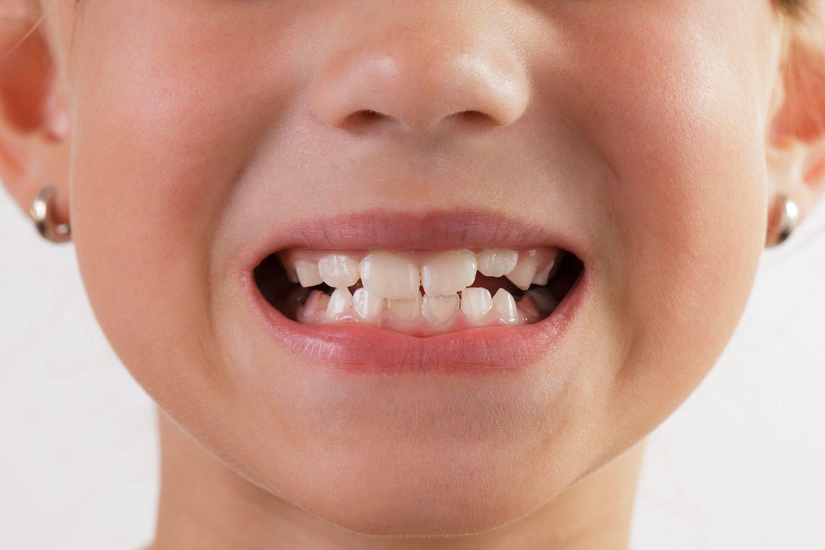 Молочные зубы растут криво - что делать?
