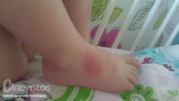 Как проявляется аллергия на укусы комаров у взрослых и детей
