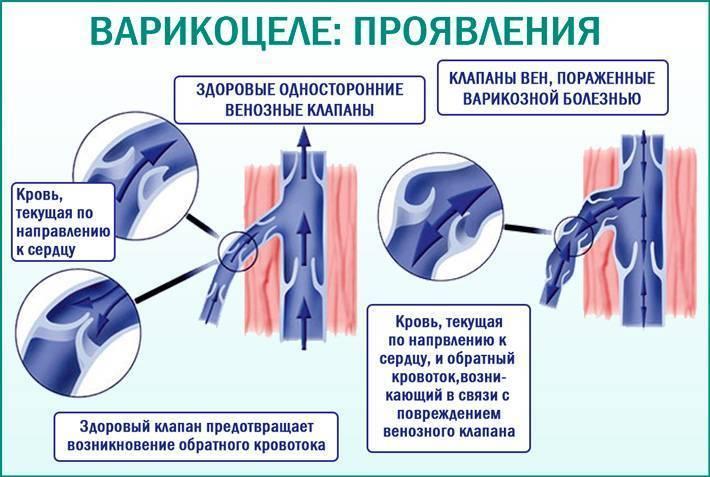 Варикоцеле у подростков: причины, симптомы, лечение