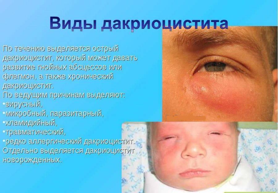 """Дакриоцистит у новорожденных: причины, лечение - """"здоровое око"""""""