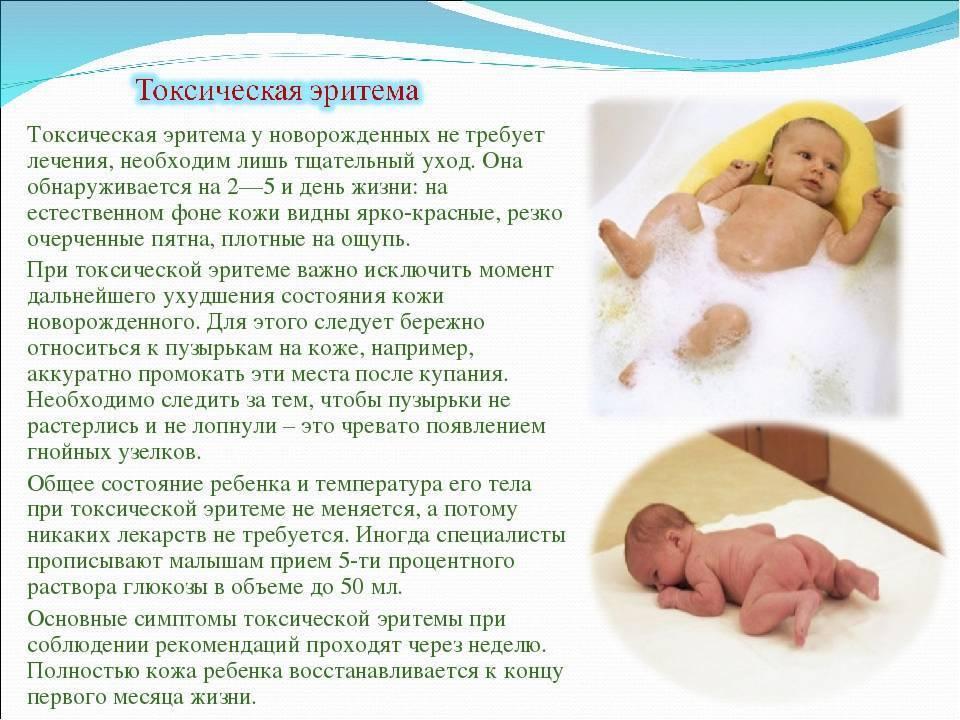 Токсическая эритема новорожденных: от чего бывает | rvdku.ru
