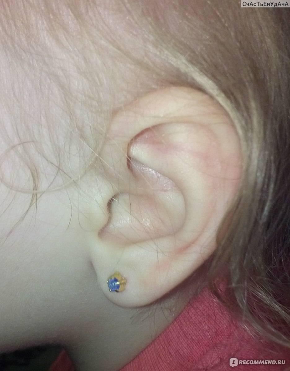 Ребенку прокололи уши (24 фото): что делать, если гноятся, чем обрабатывать и как ухаживать, сколько заживают