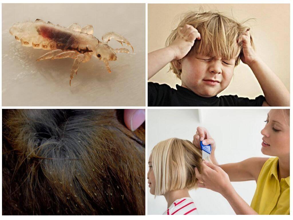 Педикулёз у детей – что это такое, пути заражения, симптомы, диагностика, лечение в клиниках препаратами и народными средствами в домашних условиях