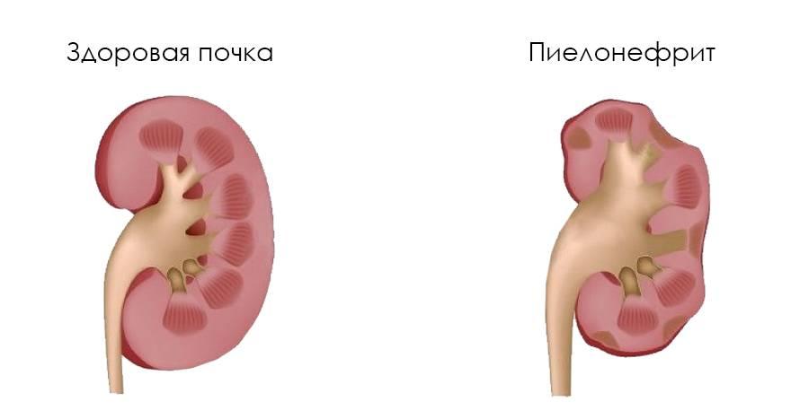 Пиелоэктазия у плода: причины возникновения и методы лечение заболевания