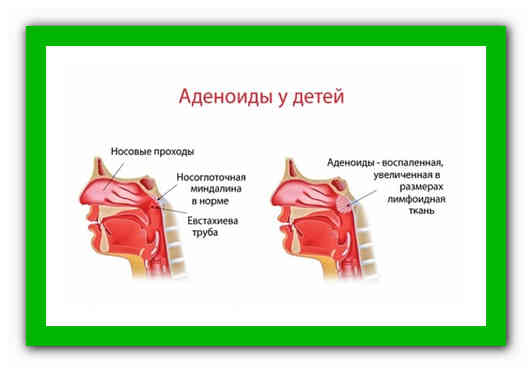 Как вылечить аденоиды у ребенка народными средствами в домашних условиях без операции? | процедуры | vpolozhenii.com