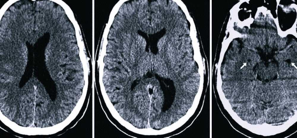 Асимметрия боковых желудочков головного мозга — что это значит
