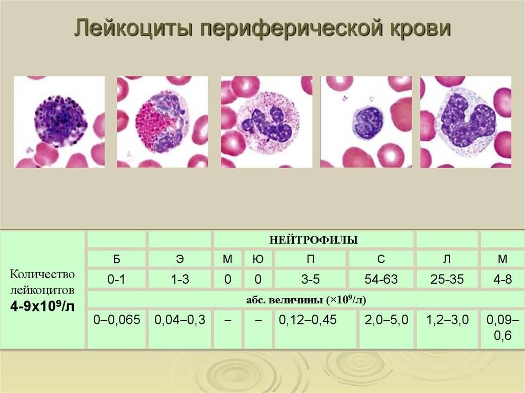 Повышенные лейкоциты в крови: причины у детей и взрослых