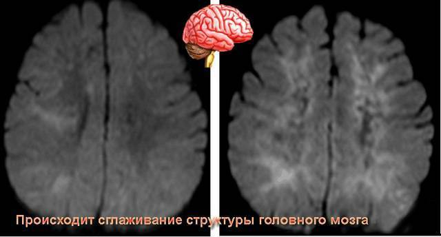 Энцефалопатия у детей: симптомы, виды, причины, реабилитация