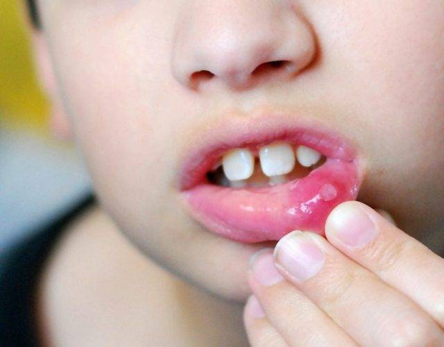 Язвы во рту у ребенка, природа и способы лечения