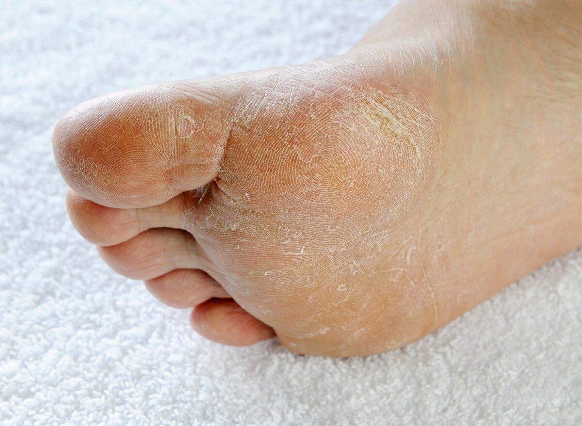 Грибок у детей - фото, симптомы инфекции, как выглядит микоз ногтей на ногах и гладкой кожи туловища у ребенка, чем лечить и какие методы лечениягрибкового стоматита, дерматита, лишая, тонзиллита, волосистой части головы идрожжевого грибка?