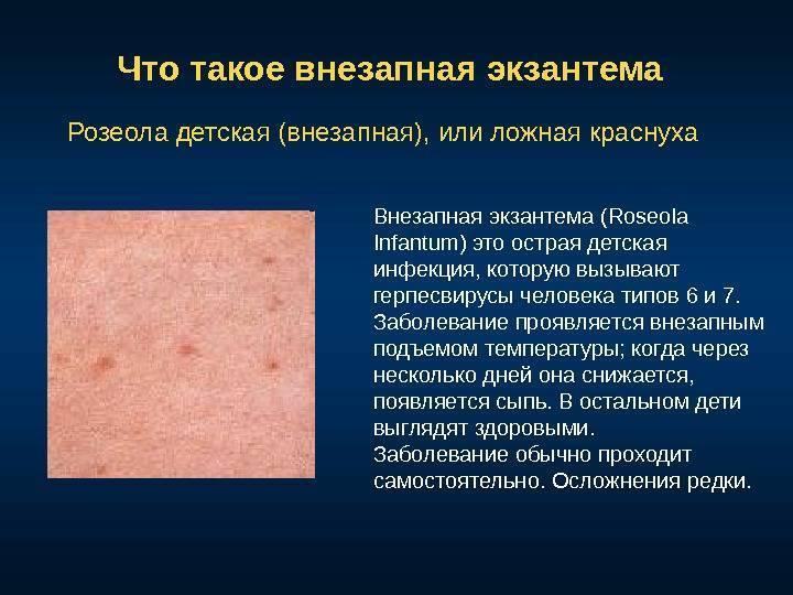 Экзантема, что это? вирусная, внезапная экзантема у детей, лечение и симптомы | здрав-лаб