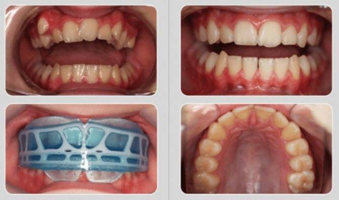 Зубные пластины для выравнивания зубов у детей и взрослых