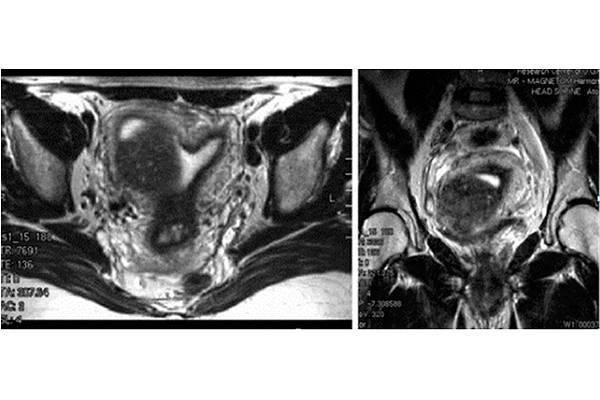 Как сочетается аденомиоз и беременность: какие шансы на зачатие и отзывы женщин