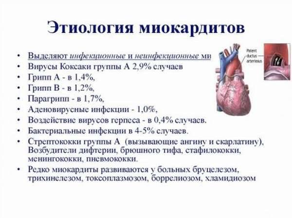 Инфекционный миокардит у детей - мир здоровья