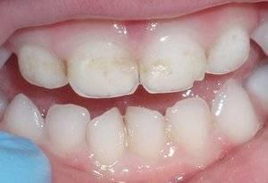 Причины черного налета на зубах у детей и простые способы лечения темных пятен
