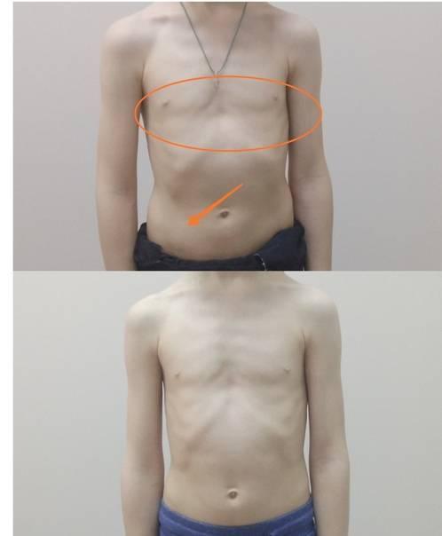 Килевидная и воронкообразная деформации грудной клетки у ребенка: причины, лечение без операции и массаж - все о суставах