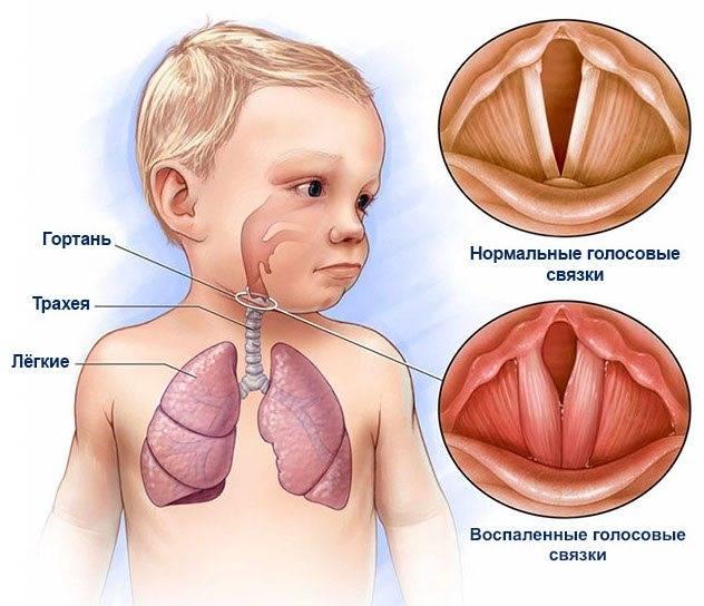 Хронический аденоидит, основные симптомы хронического аденоидита у взрослых