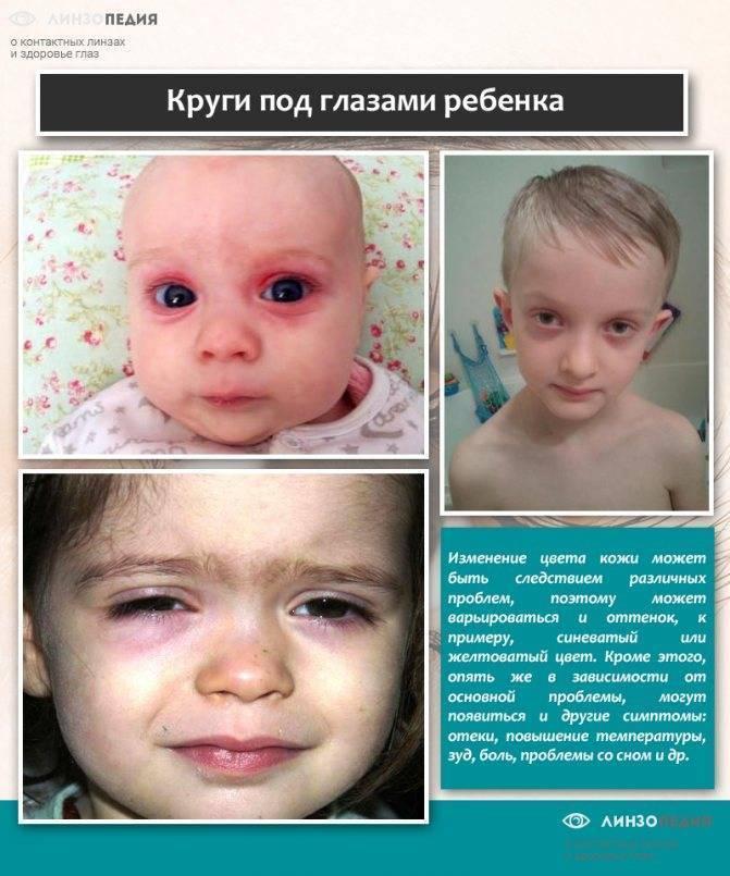 Синяки под глазами у ребенка: причины красных и синих кругов, от чего у малыша 2,3-5 лет появляются проблемы, как лечить малыша до года и после