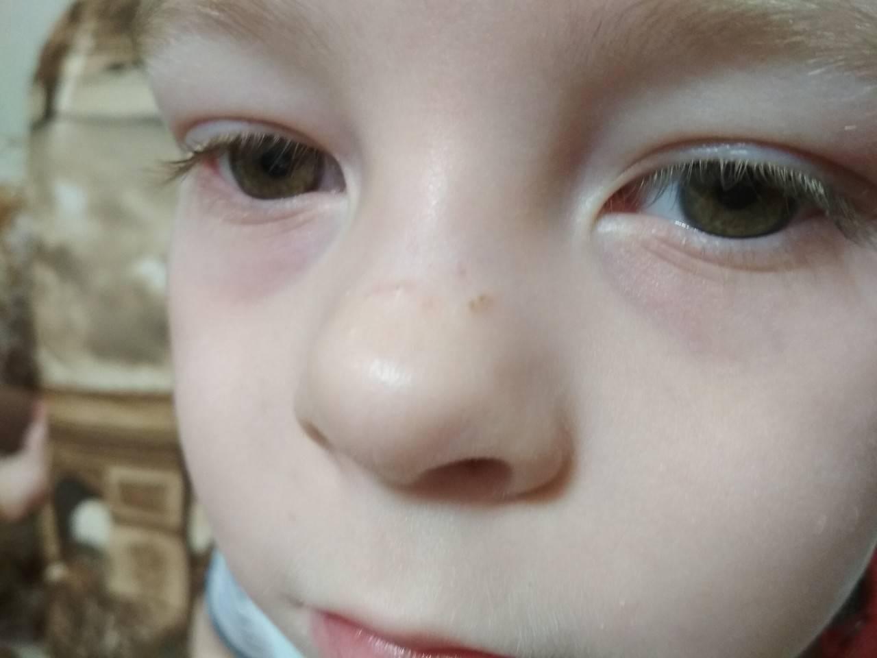 У новорожденного белые точки на носу что это такое