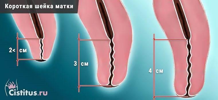 Короткая шейка матки при беременности