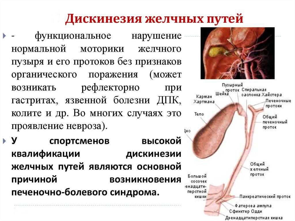 Холецистит у детей, симптомы острой и хронической формы