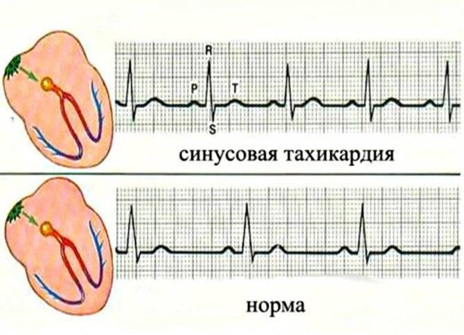 Синусовая тахикардия у ребенка причины диагностика и лечение — заболевания сердца