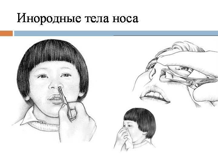 Что делать если ребенок засунул в нос предмет