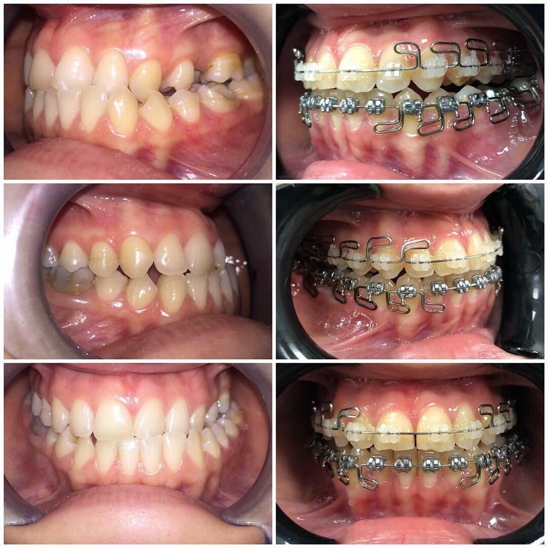 Брекеты ребенку: какие лучше ставить, как они выглядят на зубах, когда это необходимо, во сколько лет можно устанавливать систему, и уход за ней в детском возрасте.