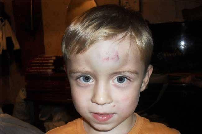 У ребенка шишка на лбу от удара: что делать, чем помазать и через сколько проходит гематома?