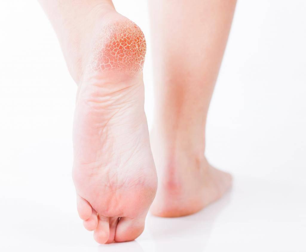 Лечение грибка ногтей на ногах и руках у детей