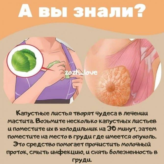 Чем полезен капустный лист при лактостазе, мастопатии и других проблемах груди - рецепты народной медицины, противопоказания и отзывы