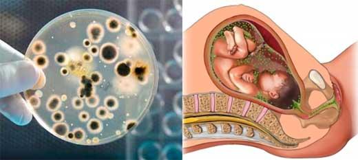 Трихомониаз у женщин и мужчин: симптомы и лечение, признаки у беременных