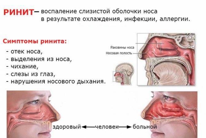 Аллергический отек носа, диагностика и лечение