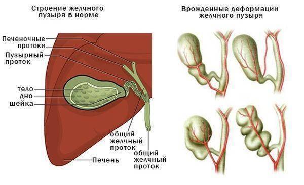Перегиб желчного пузыря у ребенка – симптомы, лечение. загиб желчного пузыря – желчегонные средства, диета