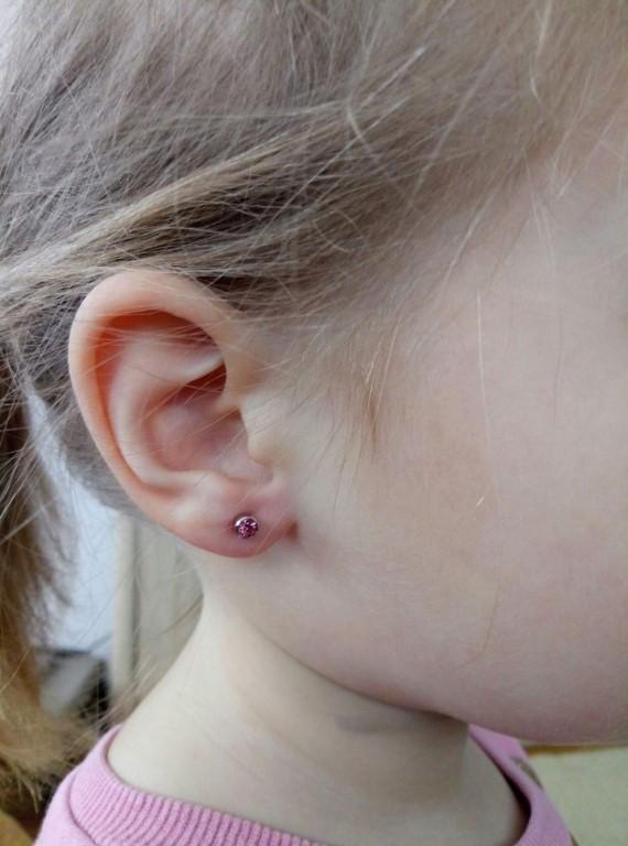 Что делать, если проколотые уши ребенка гноятся