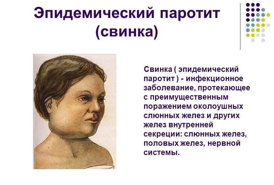 Паротит у детей (свинка): симптомы, лечение и профилактика, фото на начальной стадии | заболевания | vpolozhenii.com