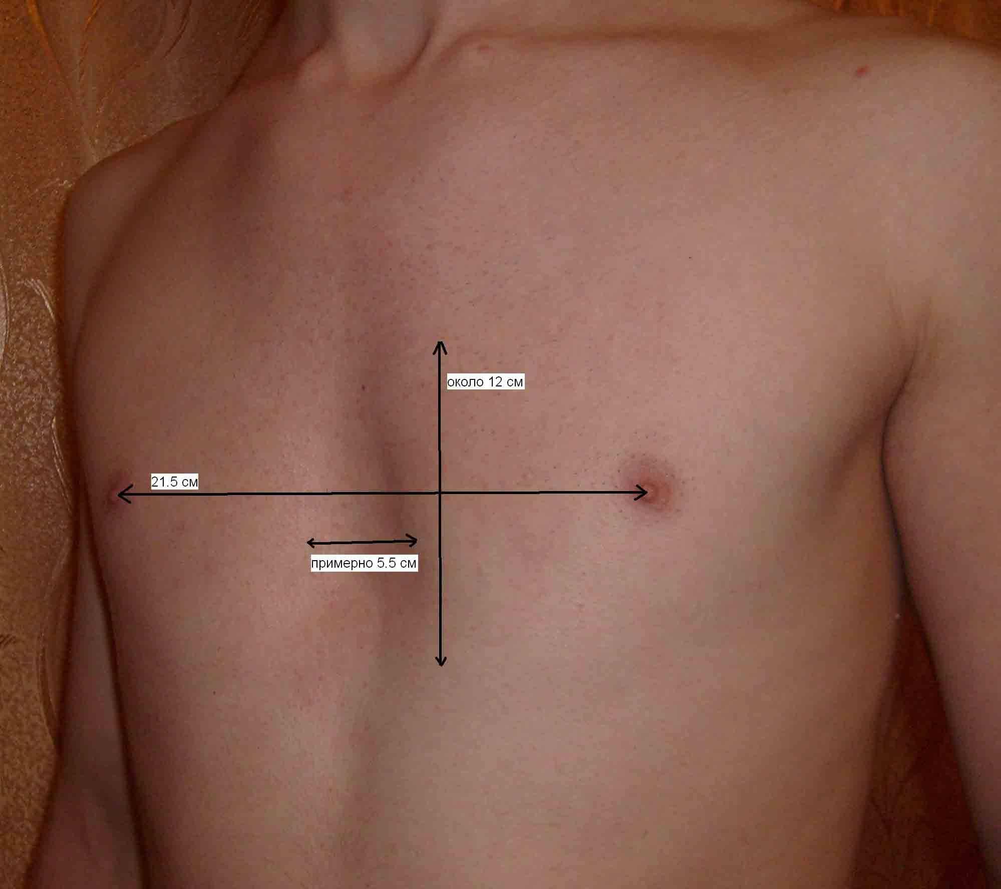 Pectusexcavatum - помогают ли питание, массаж, лечебная физкультура, занятия спортом?