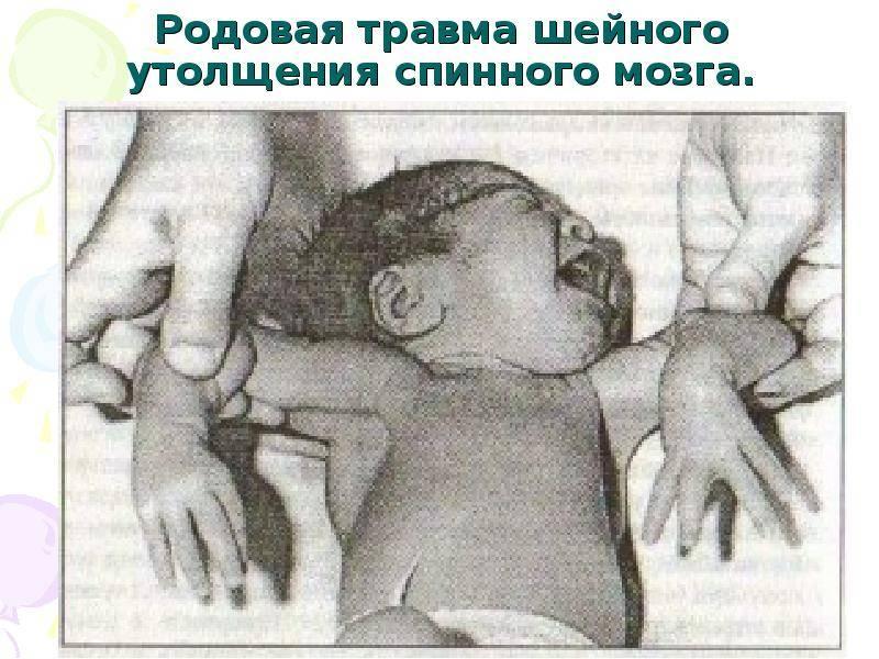 Родовая травма шейного отдела позвоночника у новорожденных: последствия и их эффективное устранение