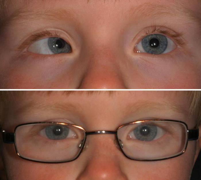 Косоглазие у детей: причины и лечение до года и в старшем возрасте, фото