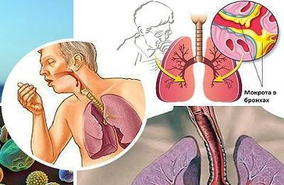 Трахеит у детей: лечение, симптомы острой и хронической форм заболевания, причины   заболевания   vpolozhenii.com