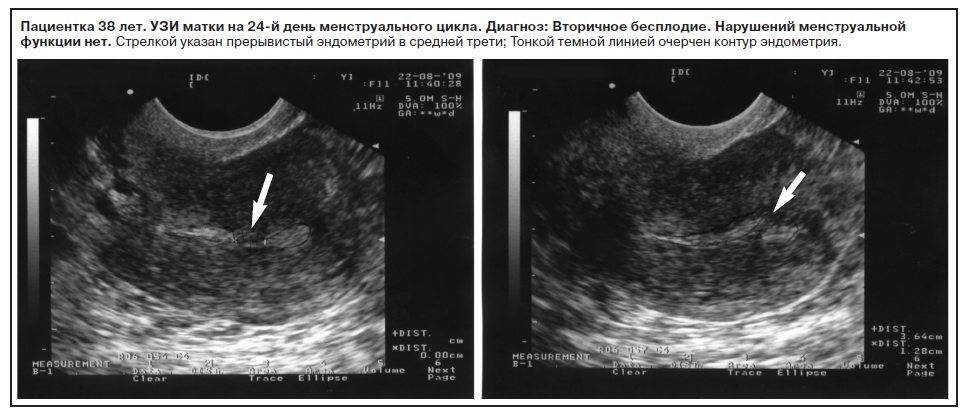 Симптомы и лечение гиперплазии эндометрия