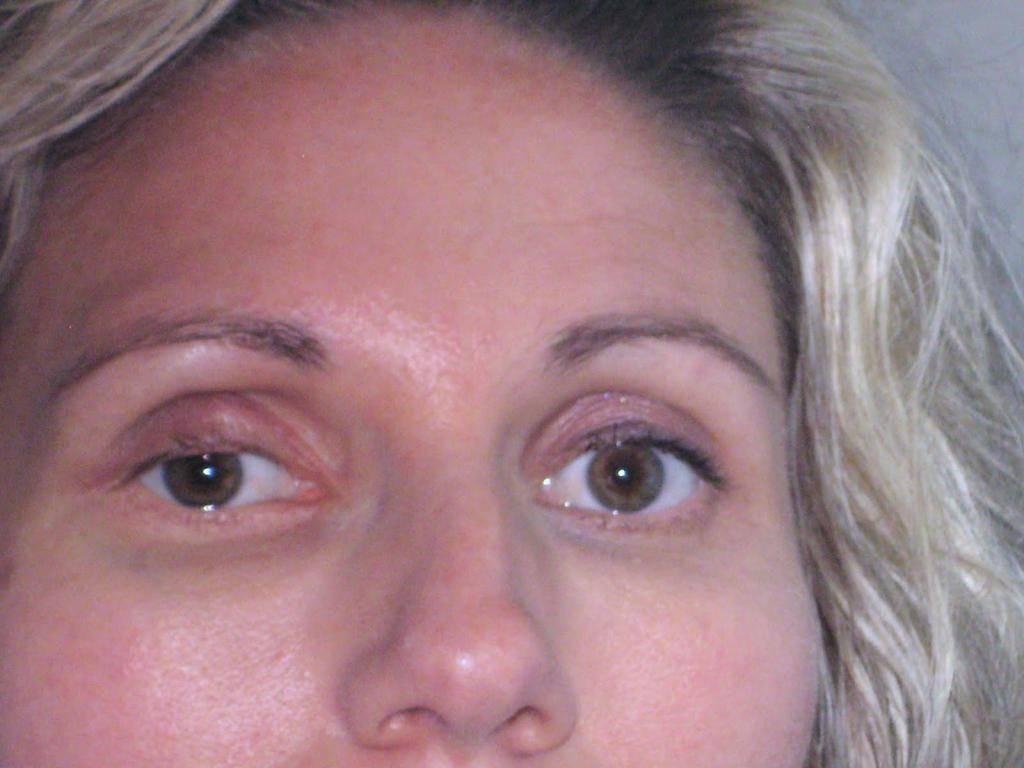 Опухла переносица у ребенка, лоб между бровями и глаза – в чем причина отека? - знающийдоктор