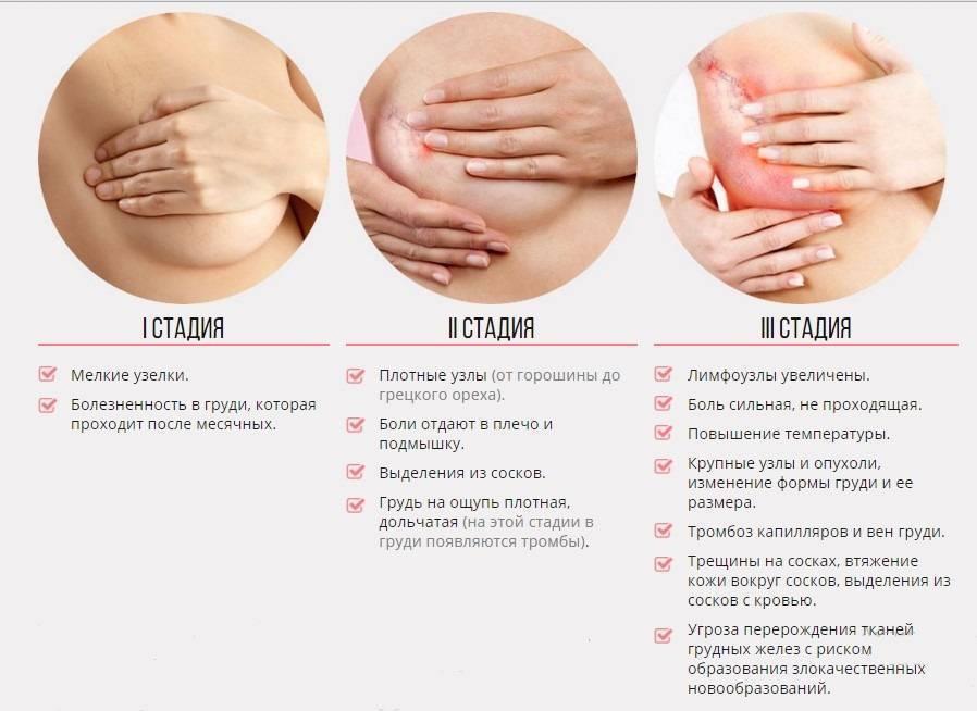 Болит грудь за неделю до месячных: норма или признаки патологии
