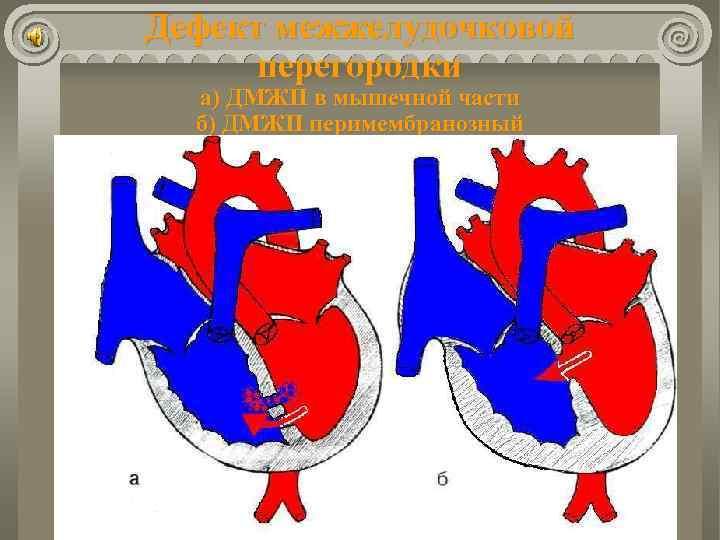 Субаортальный дефект межжелудочковой перегородки