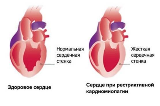 Кардиопатия: возникновение, формы, проявления, диагностика, как лечить