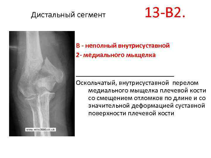 Чрезмыщелковый перелом плечевой кости со смещением у детей реабилитация