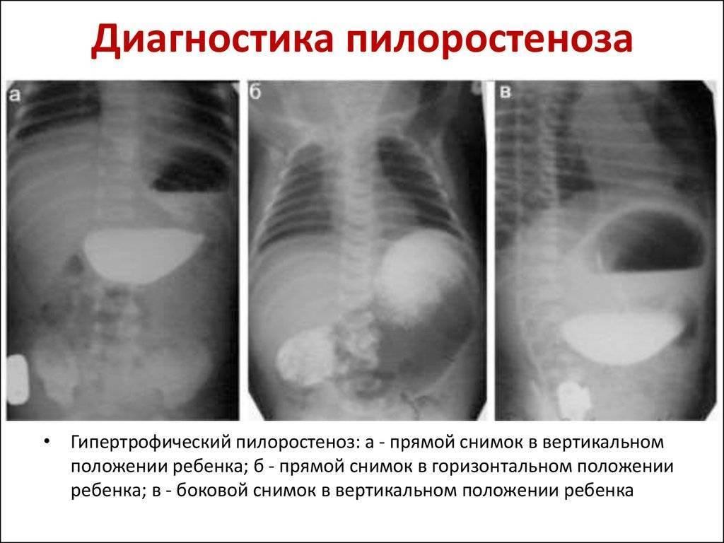 Пилоростеноз у новорожденных: симптоматика, диагностика и лечение у детей