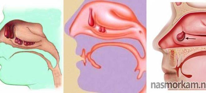 Полипы в носу у ребенка: все, что нужно знать о патологии