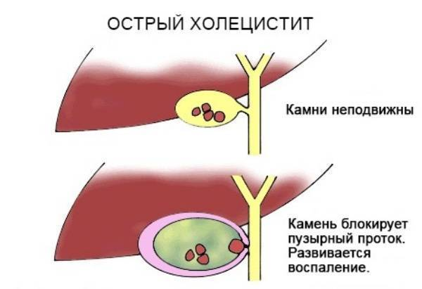 Симптоматика и лечение холецистита у ребенка