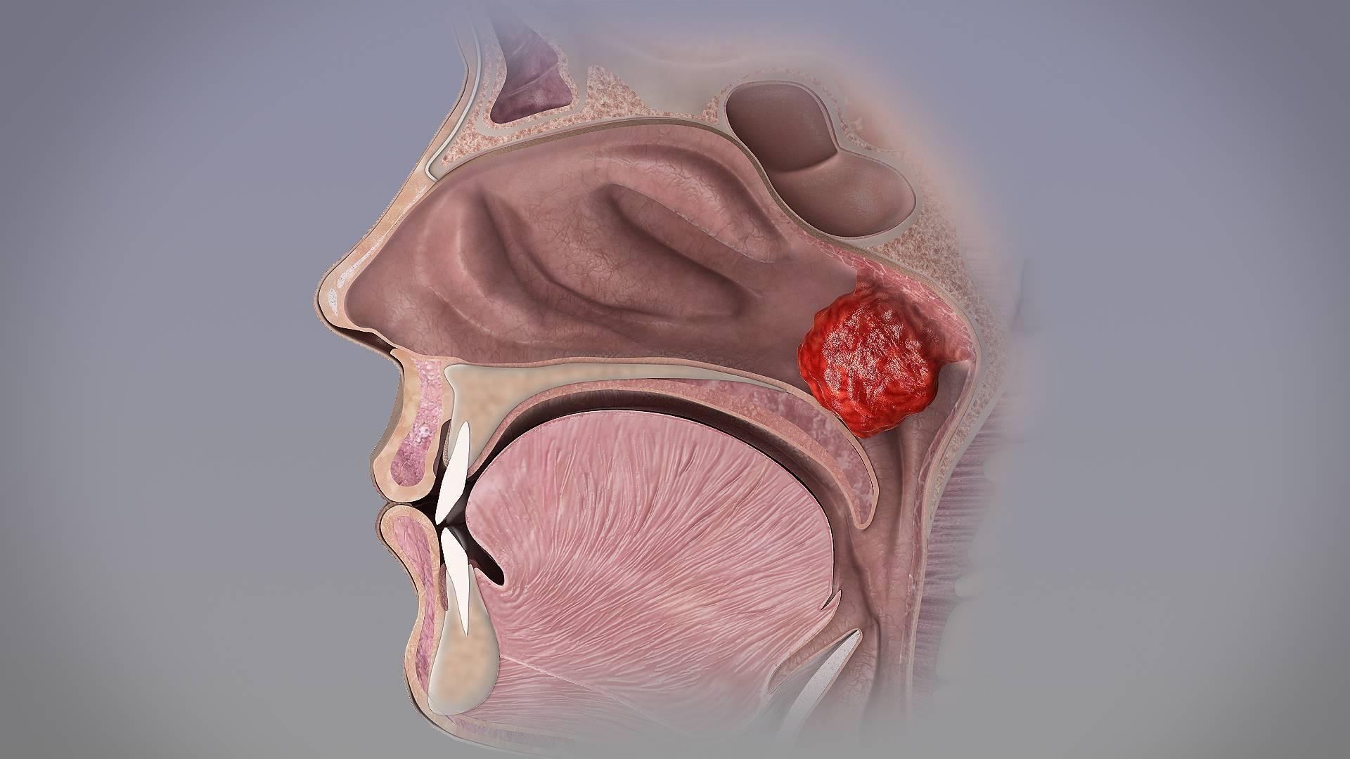Как снять отек носа у ребенка: лечение отека слизистой новорожденного и грудничка, как убрать сильный отек носоглотки при аденоидах